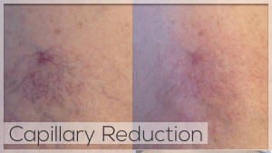 Capillary Reduction Facelove Melbourne