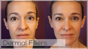 Dermal Fillers Facelove Melbourne