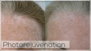 Photo Rejuvenation Facelove Melbourne