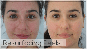 Resurfacing Peel Facelove Melbourne