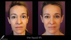 the liquid lift treatment facelove