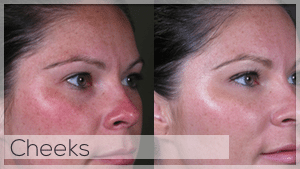 Cheek filler Treatment Facelove Melbourne