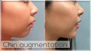 Chin Augmentation with filler - Facelove