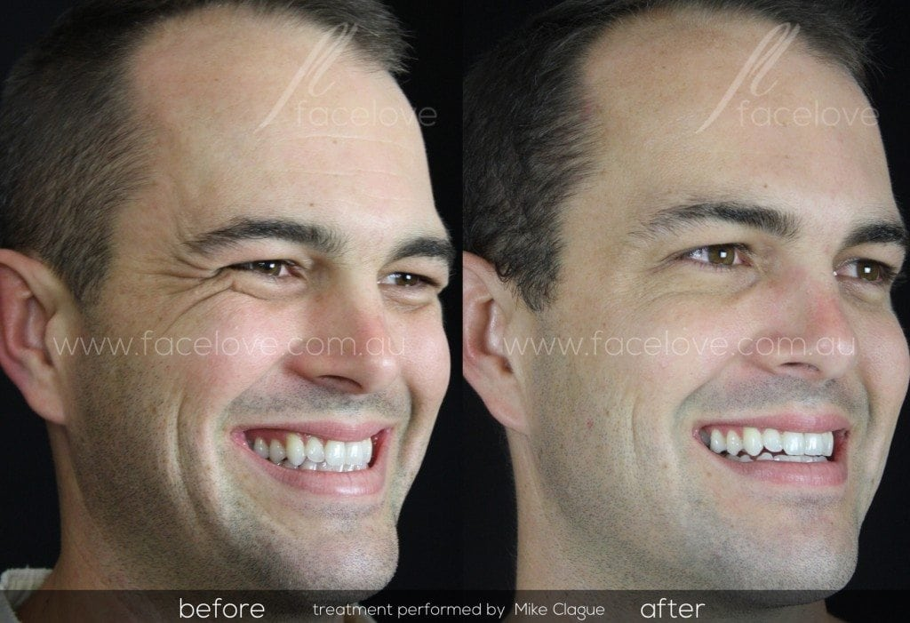 crows feet male treatment before after @ facelove