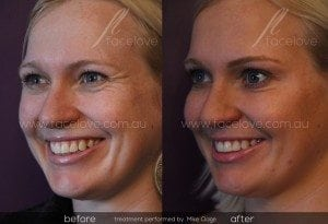 crows feet treatment before after 2 @ facelove