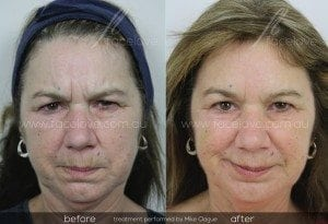 facelove frown lines anti-wrinkle treatment
