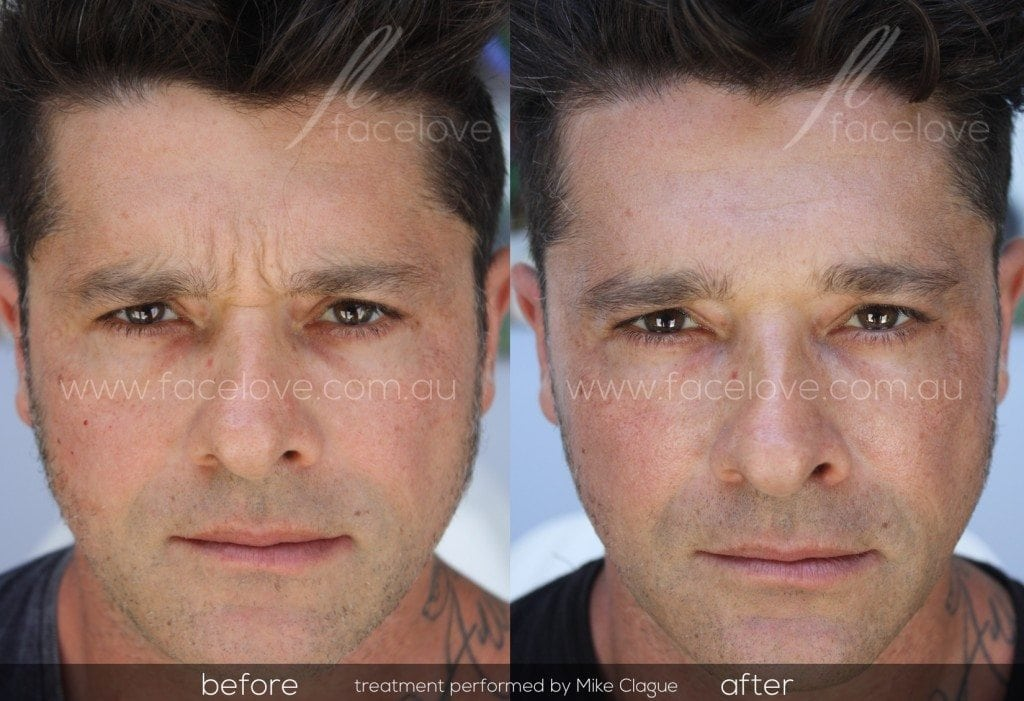 frown line anti wrinkle treatment male before and after facelove