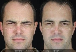 frown lines anti-wrinkle treatment male @ facelove