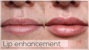 Lip Filler Treatment Facelove Melbourne