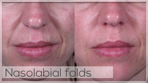 Nasolabial folds treatment Facelove Melbourne