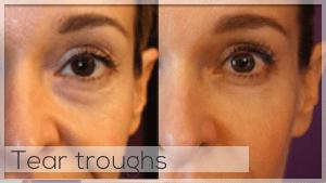 Tear trough treatment Facelove Melbourne