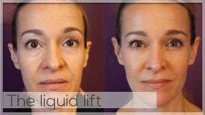 The liquid lift Treatment Facelove Melbourne