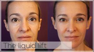 The liquid lift Treatment Facelove Melbourne