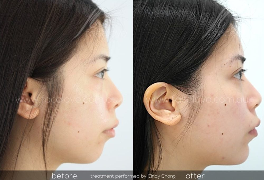 before and after chin augmentation cindy chong 2