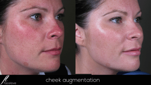 Cheek Augmentation treatment @ facelove