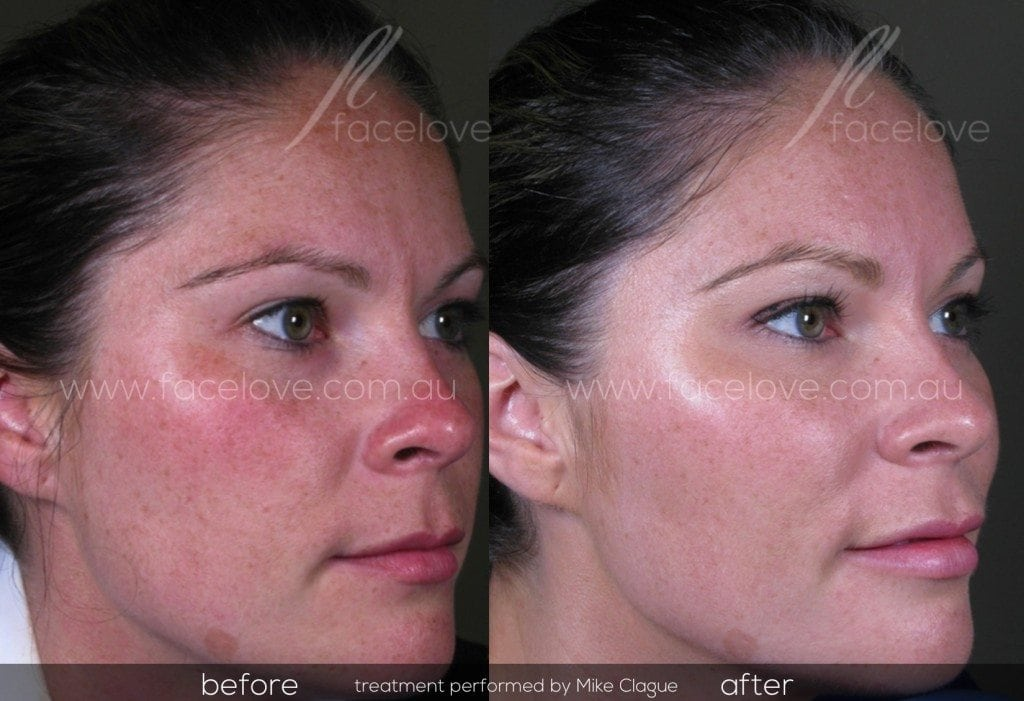 Cheek filler before and after @ facelove
