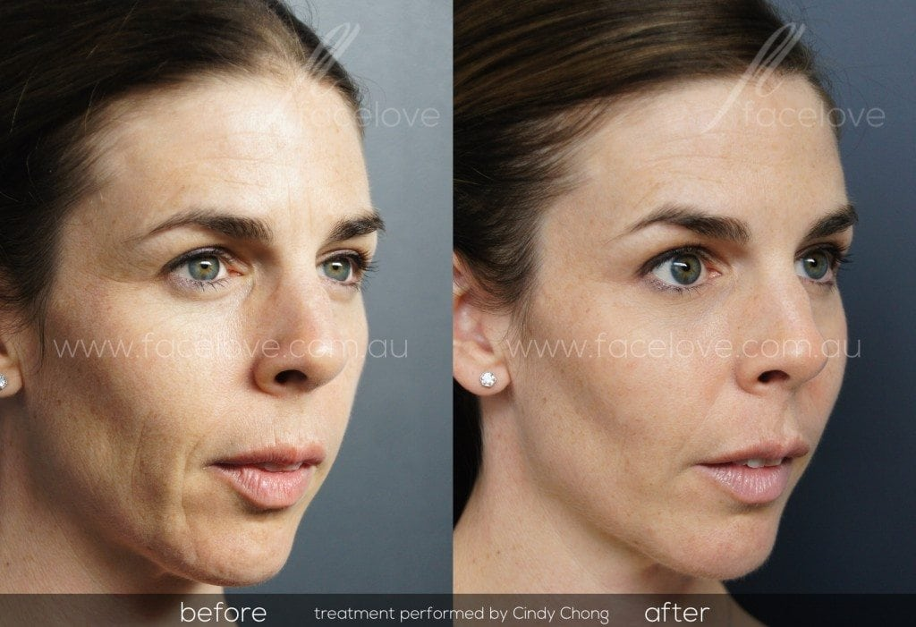 Cheek filler Before and After treatment @ facelove