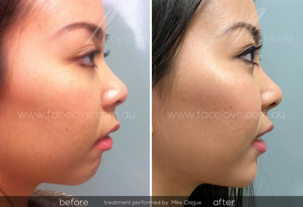 chin augmentation treatment facelove