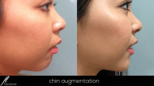 Chin Augmentation treatment @ facelove