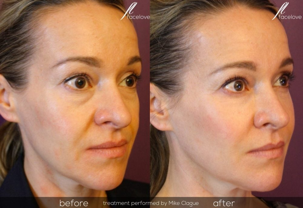 Dermal Filler Treatment Before and After @ Facelove