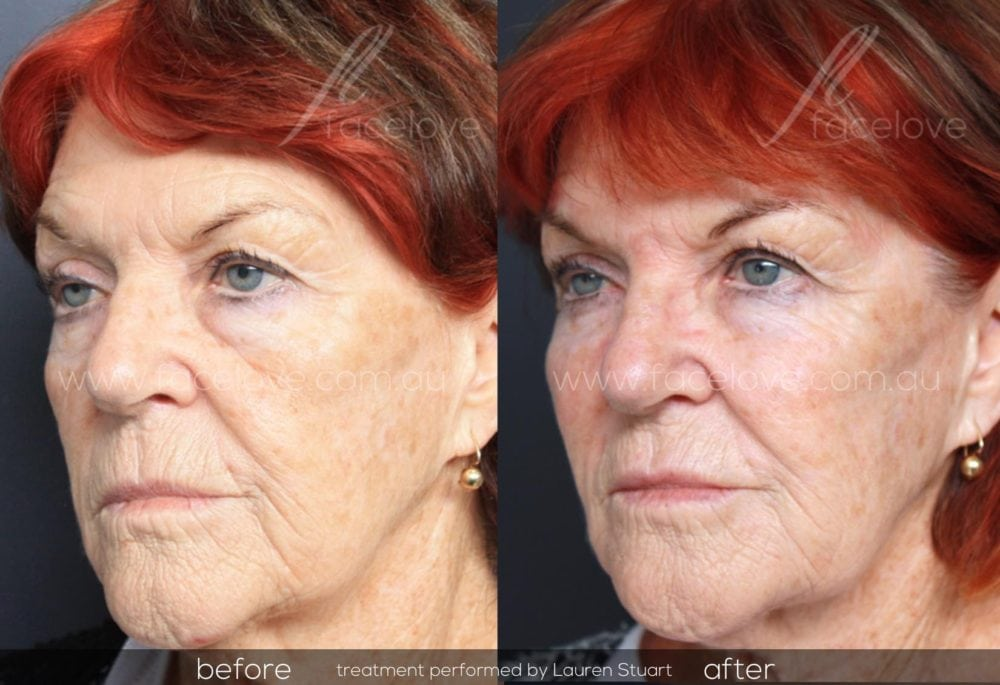 Dermal filler treatment for older women