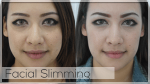 Facial Slimming Treatment at Facelove