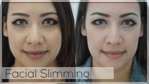 Facial Slimming Treatment at Facelove