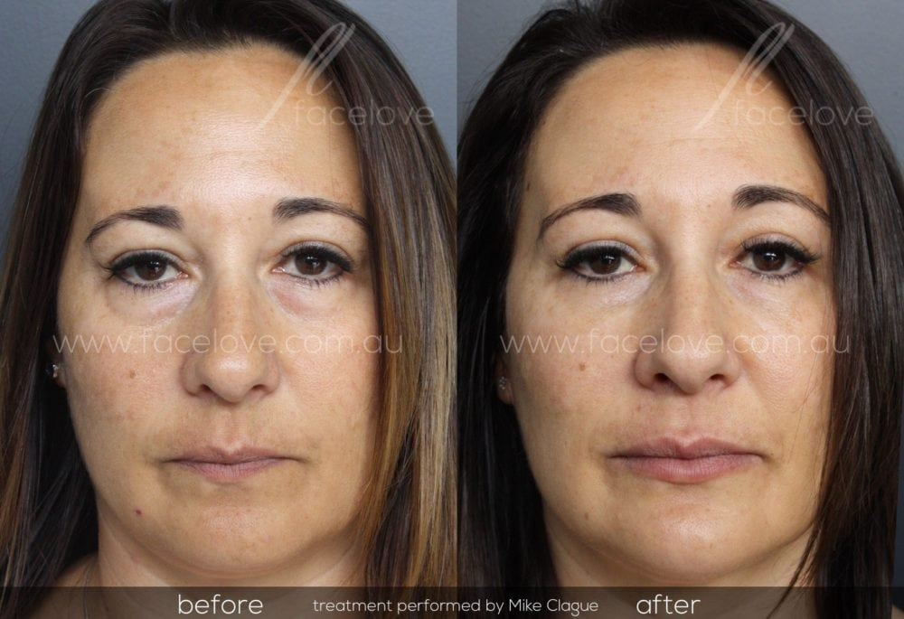 How Melbourne Residents can get rid of Bags and Dark Circles under the Eyes with Dermal Fillers