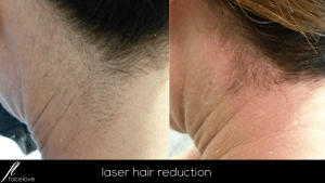 laser hair reduction treatment at facelove