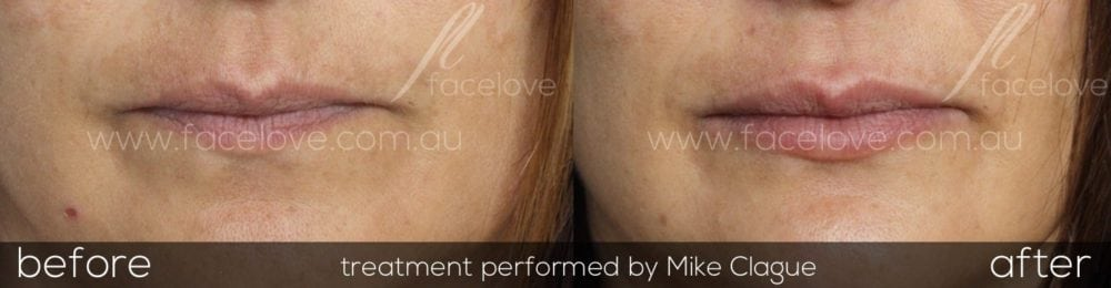 Lip dermal filler treatment before and after