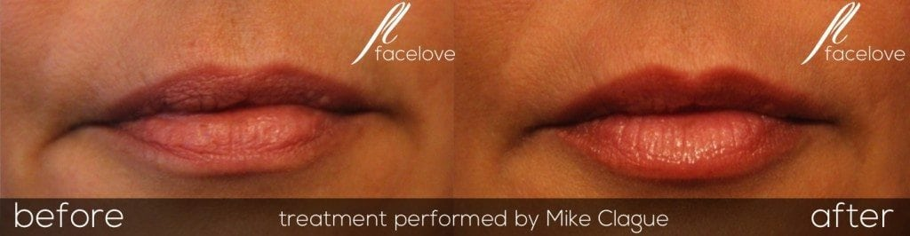Lip enhancement fillers before and after @ facelove