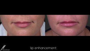Lip Enhancement Treatment @ facelove