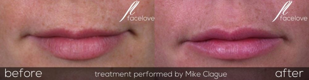 Lip enhancement with fillers before after @ facelove