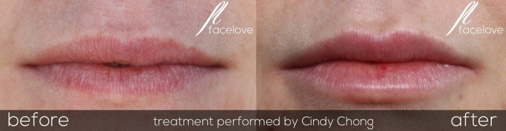 Lip enhancement with fillers before and after @ facelove