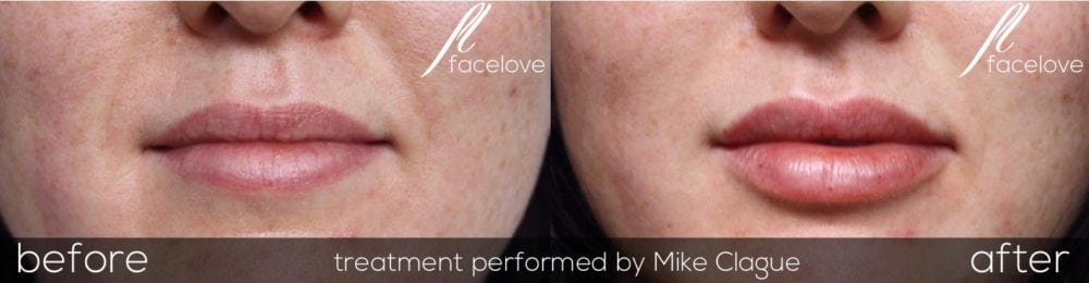 lip filler before and after @ facelove