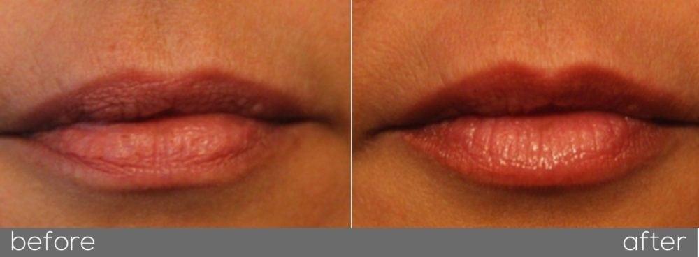 Lip filler enhancement melbourne before and after