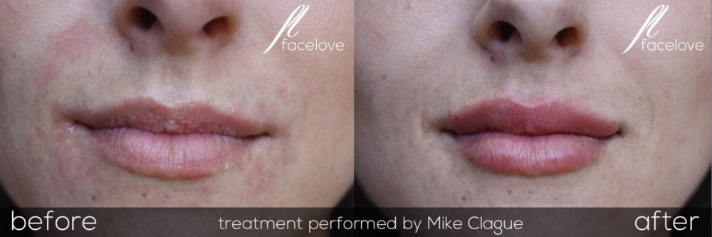 Lip Filler Treatment before and after at facelove