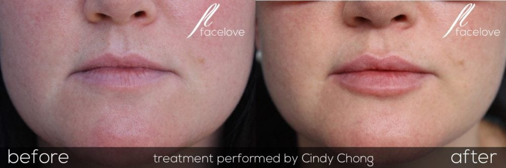lip filler treatment before and after facelove