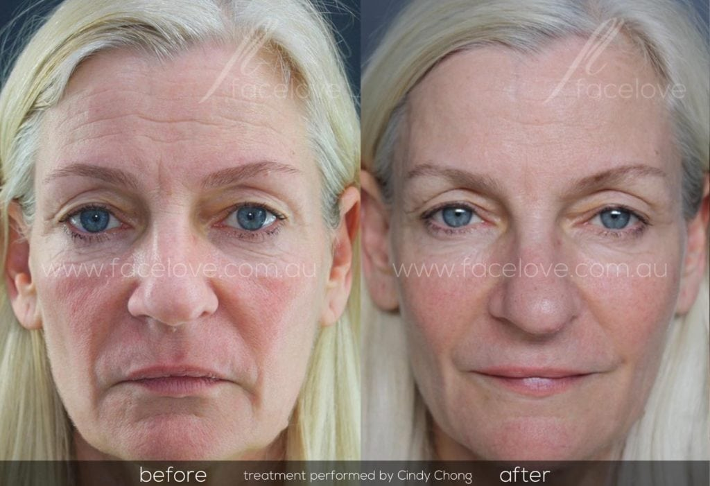 LIquid lift dermal fillers melbourne