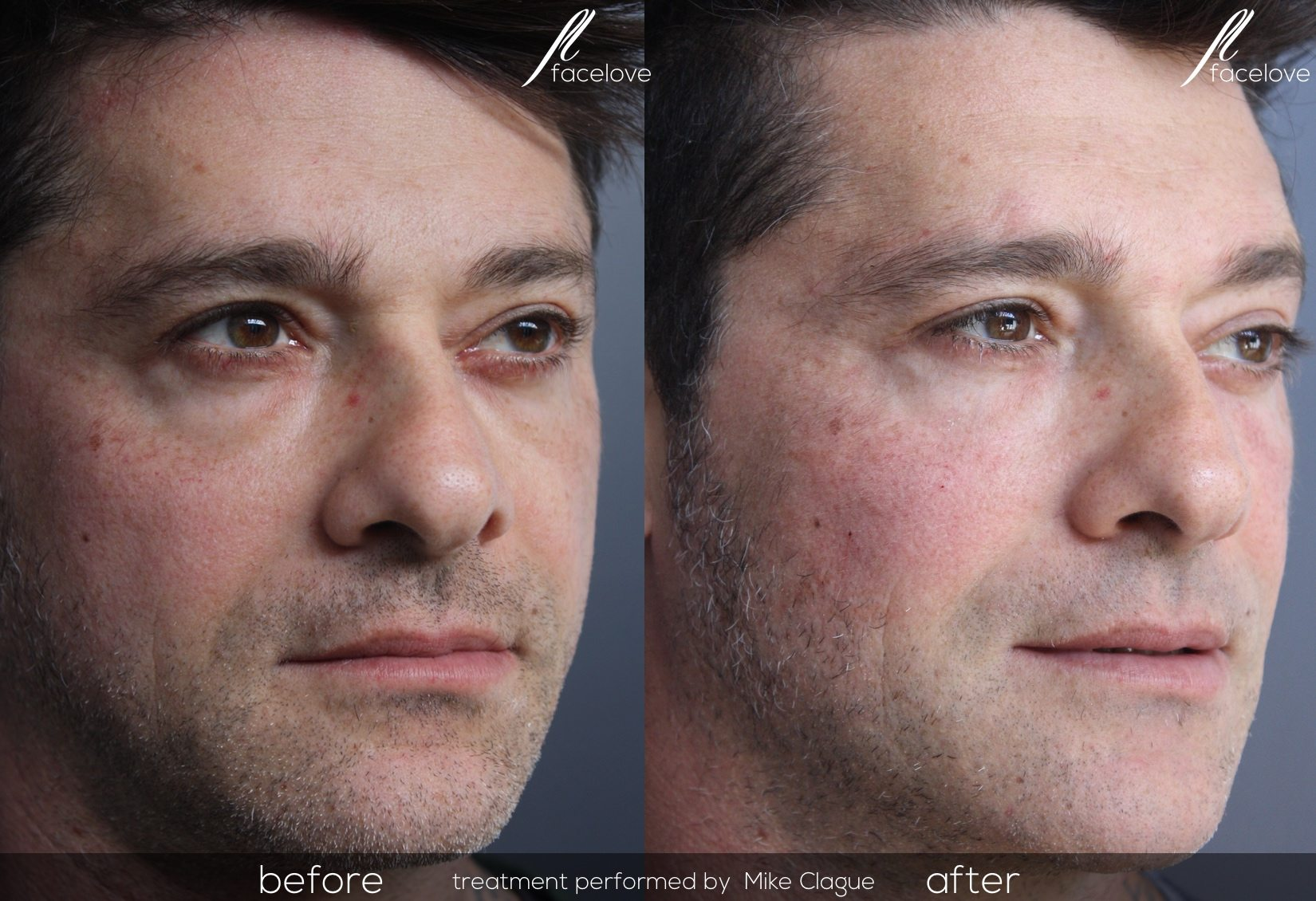 male tear trough before and after treatment facelove