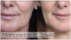 Marionette lines and jowls treatment
