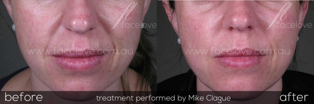 nasolabial filler treatment before and after @ facelove