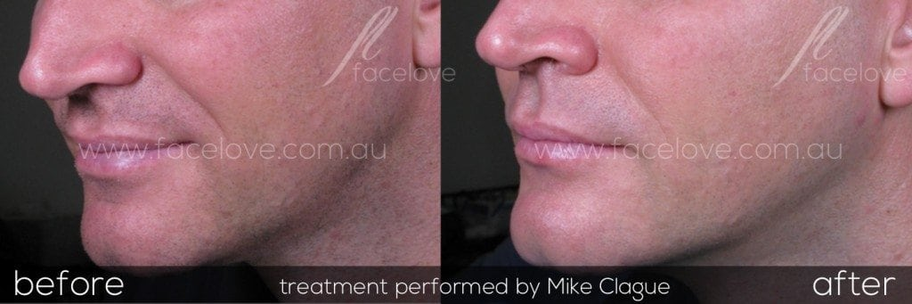 nasolabial filler treatment male before and after @ facelove