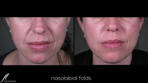 Nasolabial Folds Treatment @ facelove