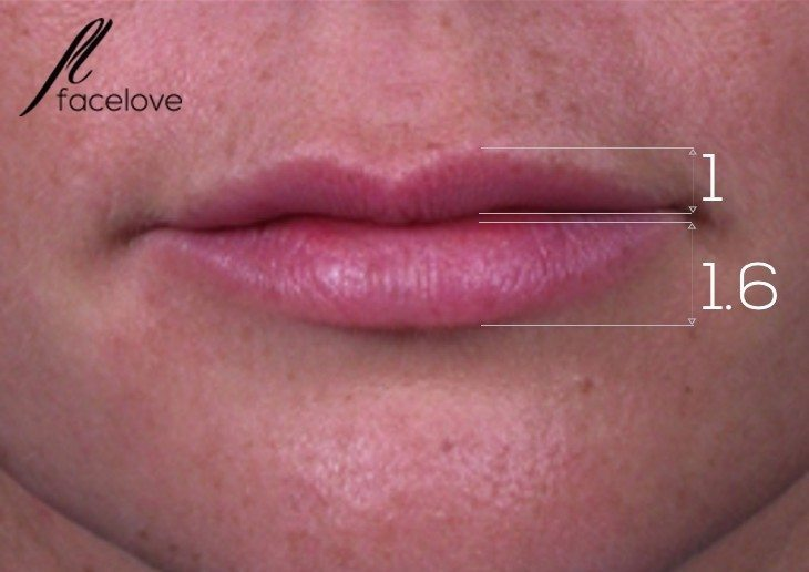 the golden ratio lip fillers melbourne