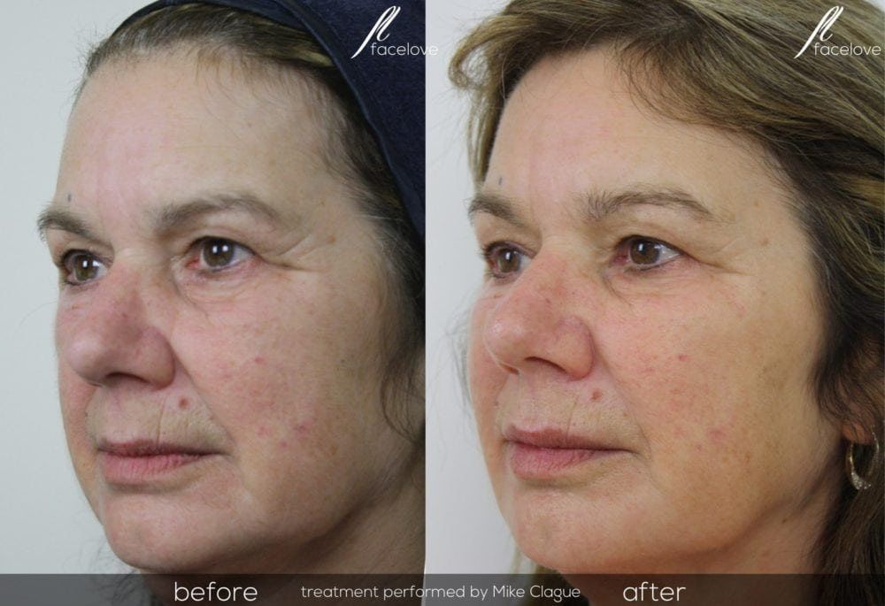 The liquid lift before and after @ facelove