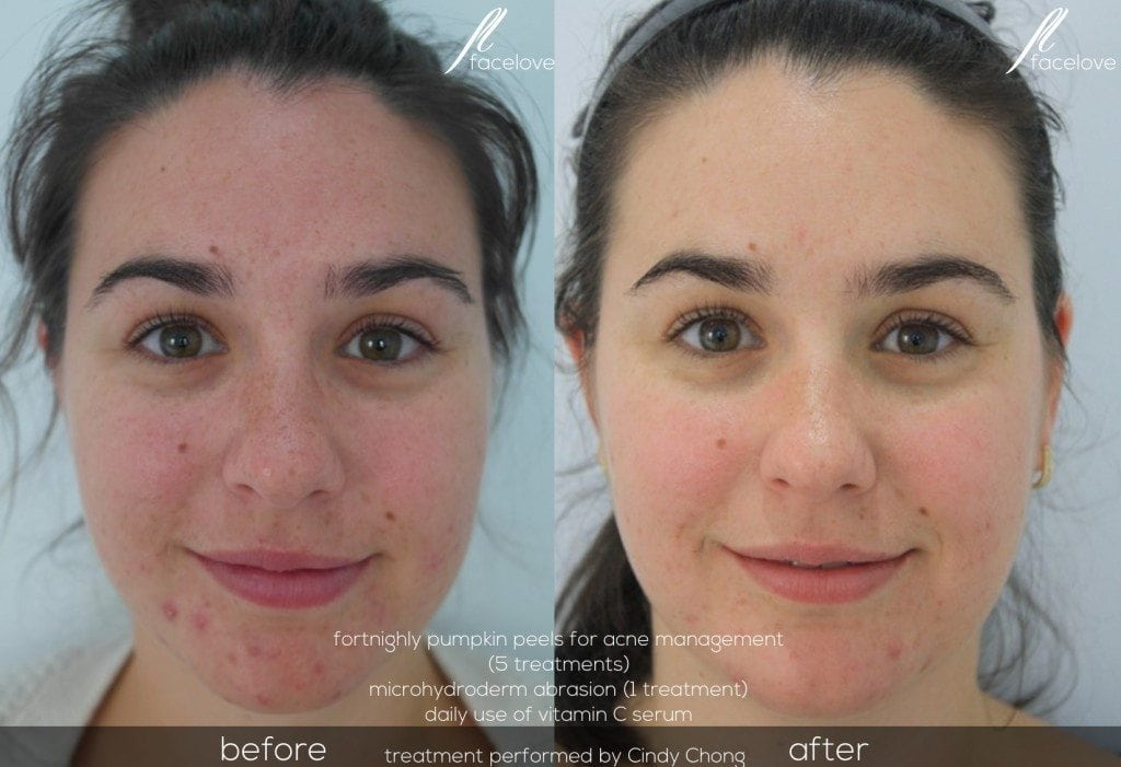 Acne management before and after @ facelove
