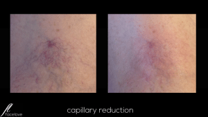 Capillary reduction treatment facelove