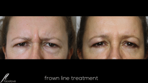 facelove frown lines 2 anti-wrinkle treatment 2