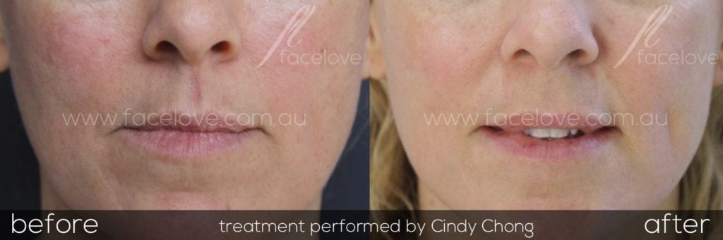 Facial Redness Reduction Treatment at Facelove